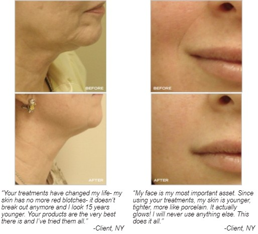 image of peptide facial results